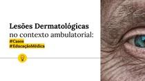 [MEDICINA] Lesões Dermatológicas no contexto ambulatoria
