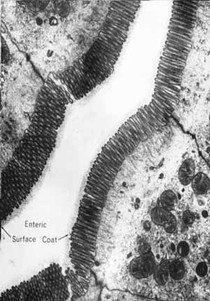 13-GLICOC+üLICE(surfacecoat)emc+®lulaabsortivaintestinal.Ob~