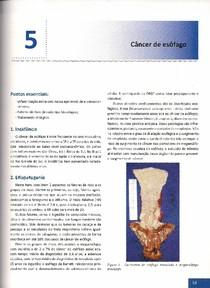 Capítulo 5 - Câncer de Esôfago