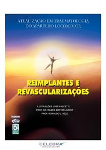 Traumatologia do Aparelho Locomotor Mão   Rames et.al