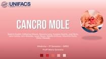 Cancro Mole - TRABALHO