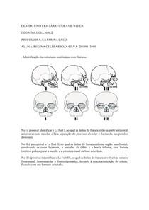 Fraturas do crânio - Anato bucomaxilo