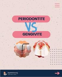 gengivite x periodontite
