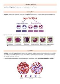 Resumo - Leucemia Mieloide Aguda