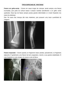 APOSTILA TRAUMATOLOGIA GERAL 2014 IBMR.