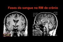 Fases do sangue na RM de cranio