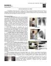 MedResumos - Estudo radiológico do Tórax