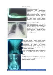 vasos proeminentes raio x do tórax