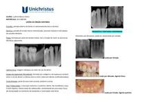Lesões do órgão dentário