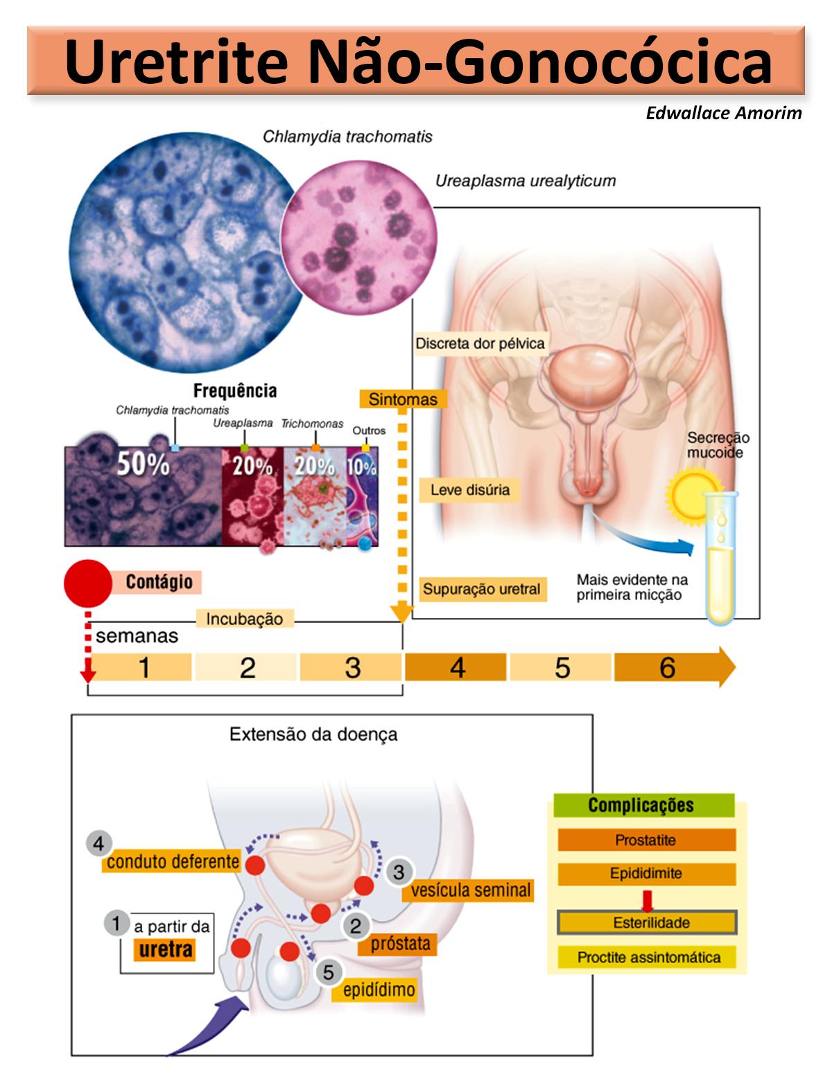 uretrite non- gonococica